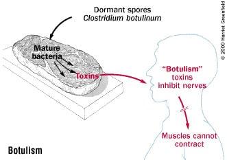 Clostridium botulinum là vi khuẩn kị khí, sinh bào tử; độc tố botulism rất mạnh. Cách nhận biết trong thực phẩm và cách phòng tránh ngộ độc